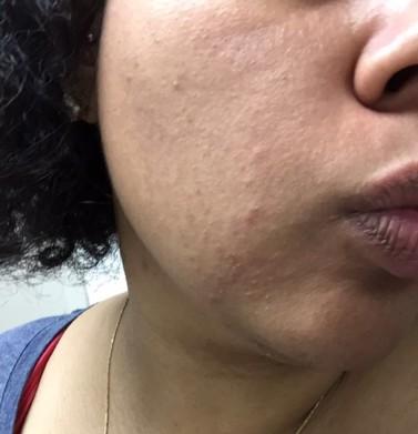eczema bad 1